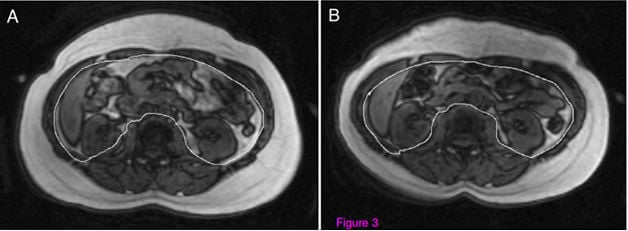 Varady UIC Study MRI Images Visceral-Fat