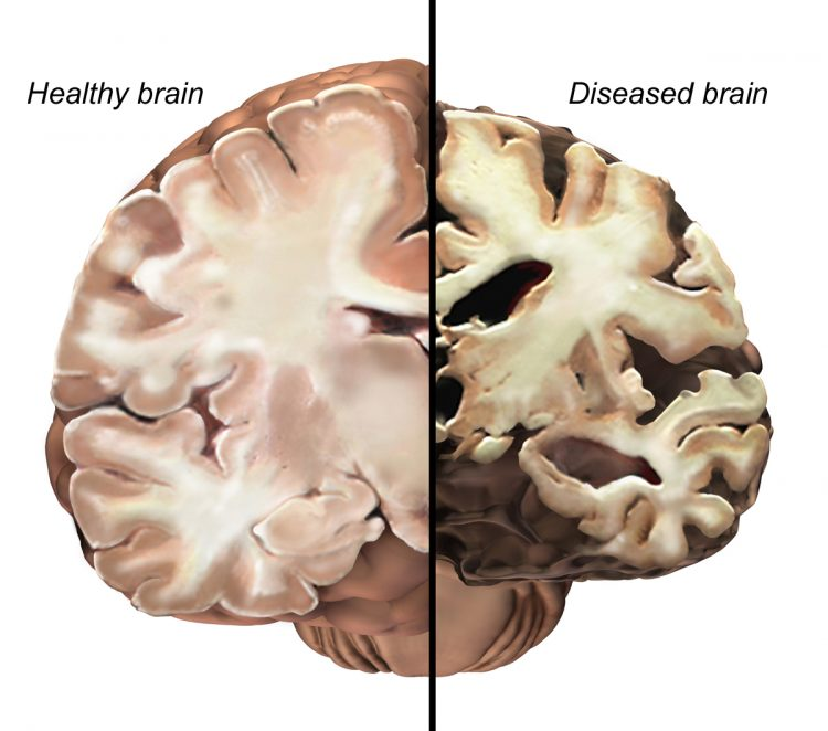 obesity alzheimer's link brain compare
