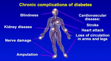 Can Type 2 Diabetes Be Reversed ?