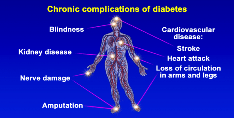 can type 2 diabetes be reversed permanently