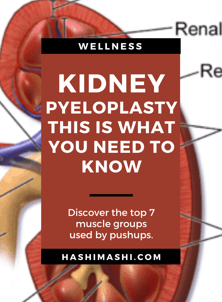 Kidney Pyeloplasty - This Is What You Need To Know Image Credit HashiMashi.com