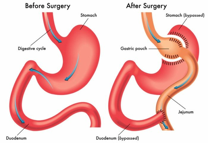 weight loss surgery options gastric bypass surgery Image Credit UCLA Medical Center