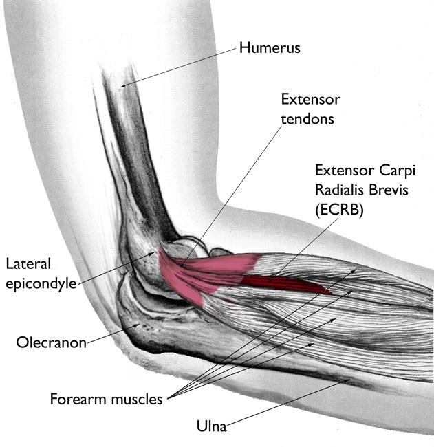elbow pain from lifting weights image credit OrthoInfo - AAOS Reproduced and modified from The Body Almanac. © American Academy of Orthopaedic Surgeons, 2003.